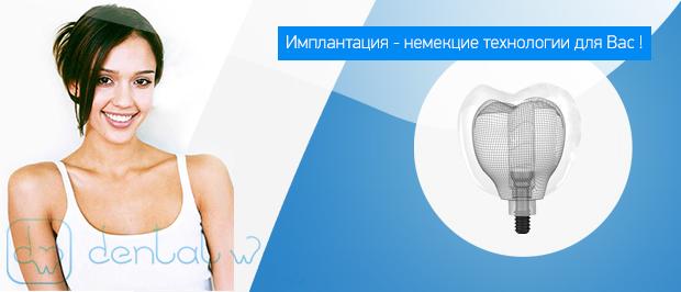 имплантация зубов в Подольске